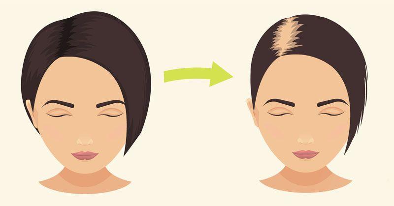 طرق علاج تساقط الشعر الشديد عند النساء